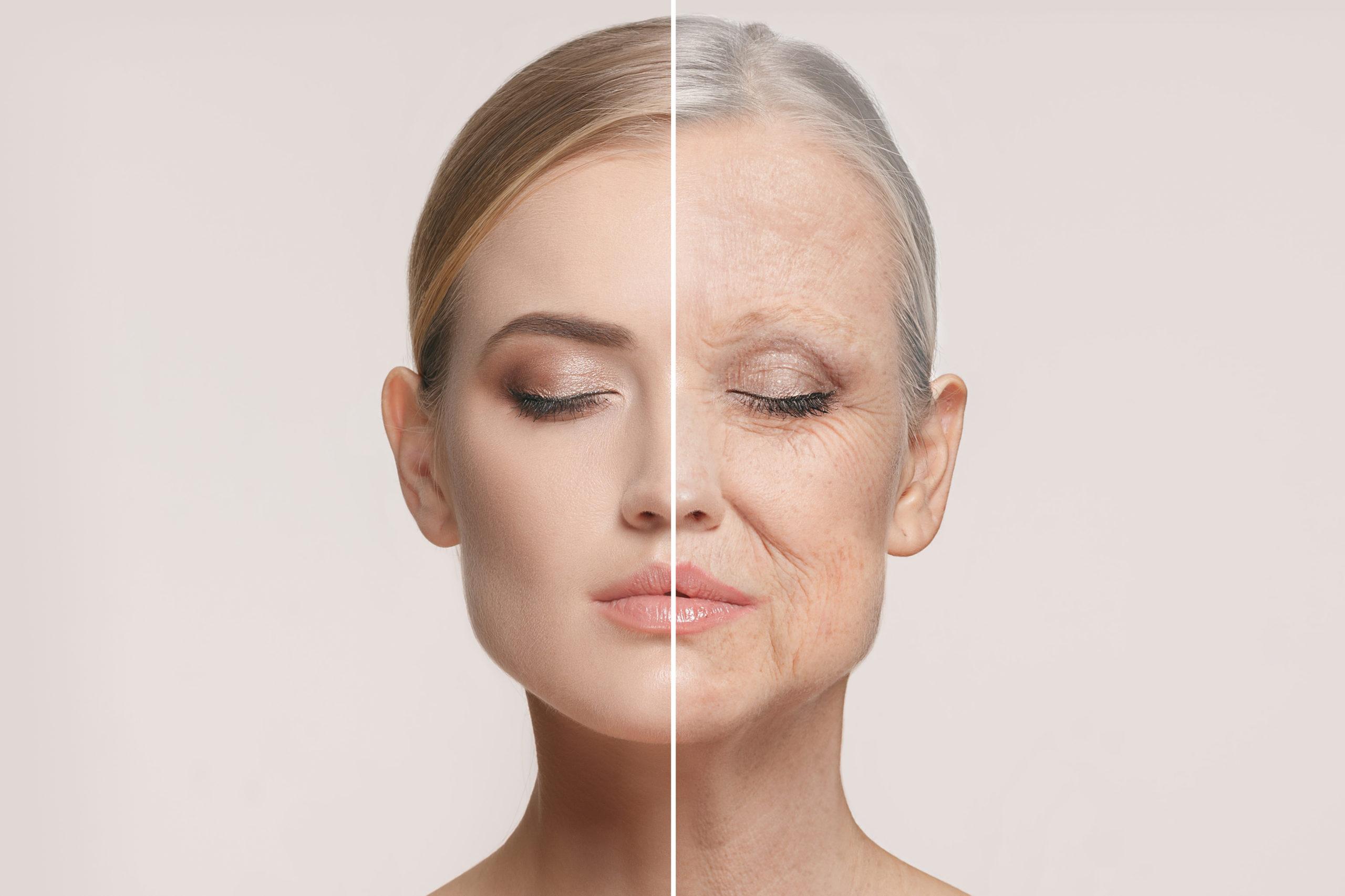 老化肌と美肌